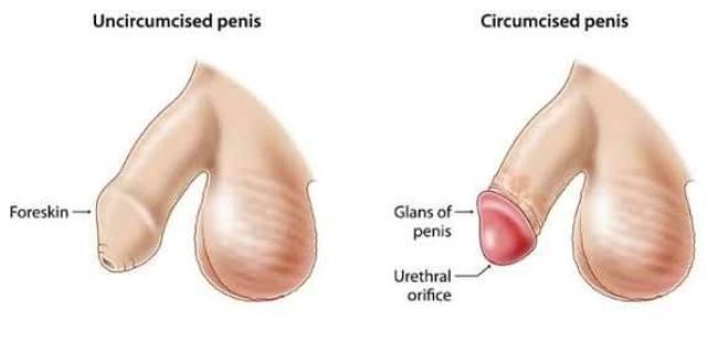 CIRCUMCISION Treatment
